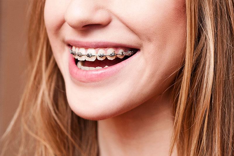 San Juan Capistrano Orthodontics